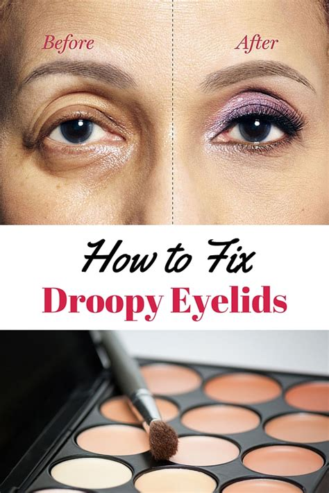 My Tool Eyelid how to fix droopy lids how to correct drooping eyelids