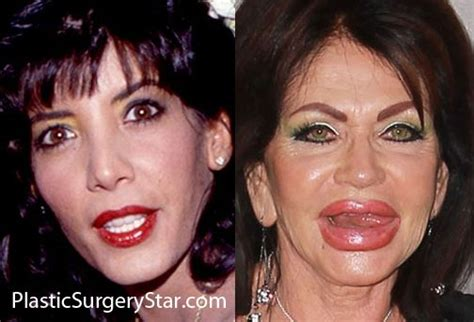 photo gallery before and after cosmetic surgeon in the pinterest the world s catalog of ideas