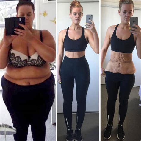 z weight loss weight loss success stories 99 pics izismile