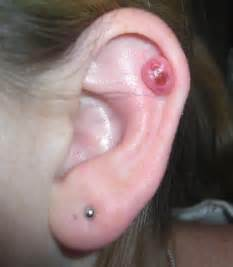 cartilage piercing bump infection symptoms causes