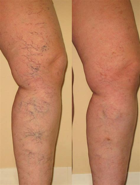 before amp after mooresville vein therapy charlotte nc