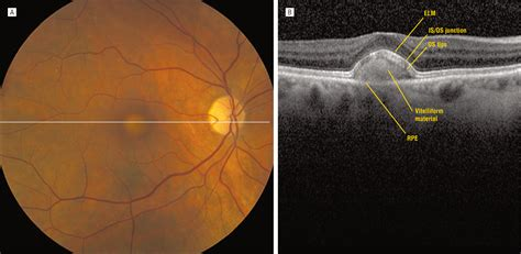 retinal pattern dystrophy icd 9 three dimensional distribution of the vitelliform lesion