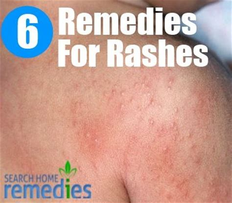 6 home remedies for rashes home remedies