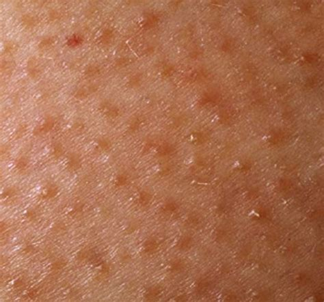 keratosis pilaris dermatological diseases epharmapedia