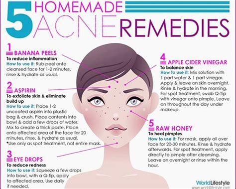 Small Acne Home Remedies Small Acne Home Remedies 28 Images 1000 Ideas About