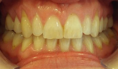 toothteeth whitening  brighten  smile elmwood