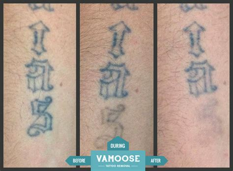 partial laser tattoo removal chicago il vamoose