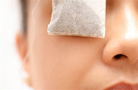 home remedies for pink eye treatment