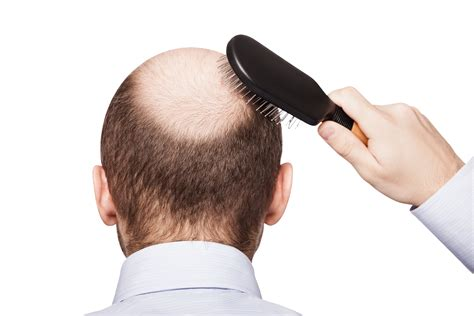 hair loss treatment low level laser hair loss treatment embellish you