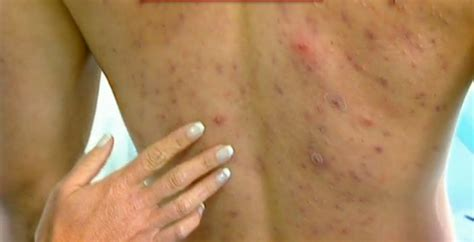 pimples on back acne on back itchy back causes treatment
