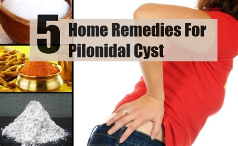1000 images about pilonidal cyst treatment on