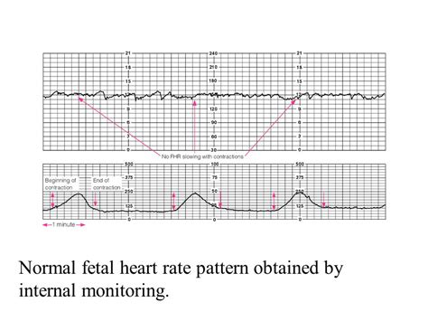 pattern heart rate n 106 labor and delivery ppt download