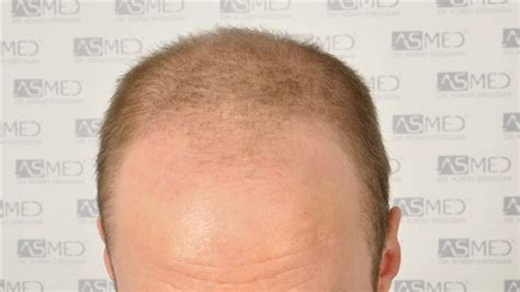 fue results with short hair asmed hair transplant results gallery norwood 5 dr