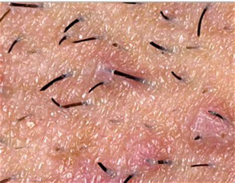 types of ingrown hair scarring from ingrown hair medscar