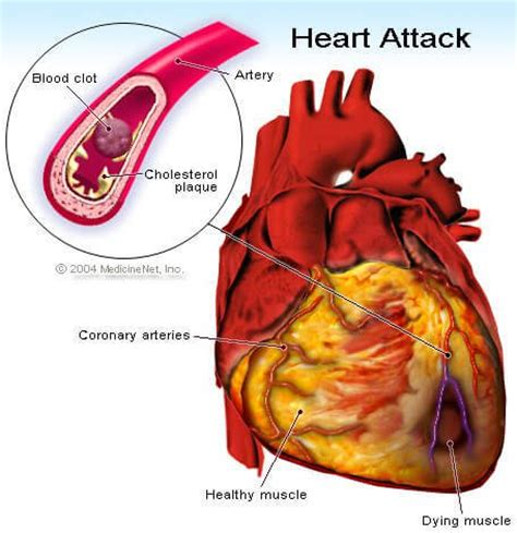 Heart Attack: Learn About Symptoms, Signs, Risk & Treatment