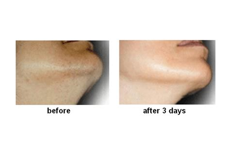 how to treat an ingrown hair on chin ingrow stopagainst ingrown hairs solutions cosmeceuticals