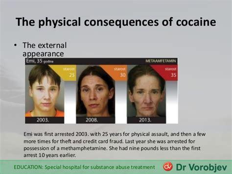 Cocaine Detox Symptoms by Symptoms Of Use