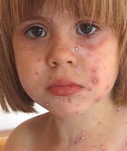 windpocken erwachsene duschen w 252 rmer bei kindern foto behandlung symptome