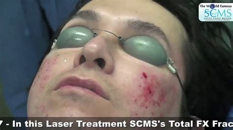 laser clinic bournemouth laser clinic co2 laser surgery