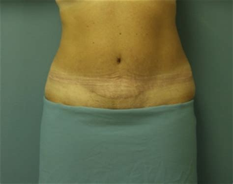 will insurance pay for tummy tuck after c section 100 ideas to try about tummy tucks cosmetic surgery