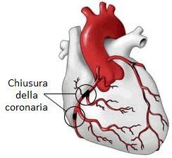 l infarto del miocardio infarto del miocardio infarto al miocardio