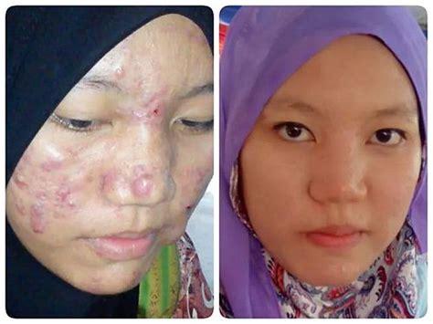 Sabun Muka Remaja sabun untuk masalah jerawat
