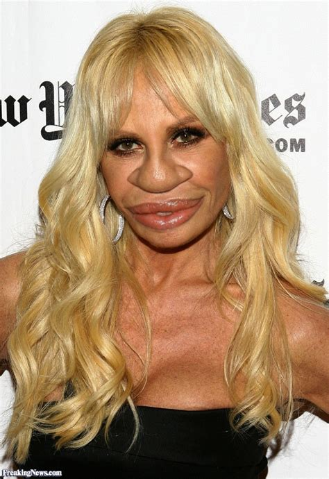 donatella versace with a big nose pictures freaking news