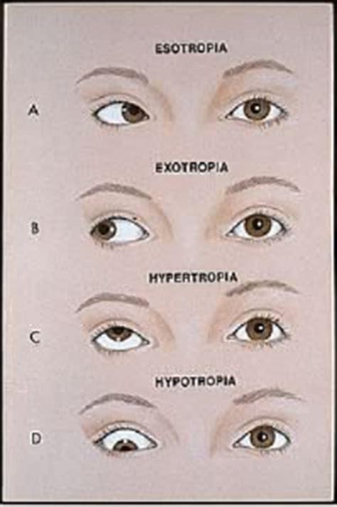 Obat Tetes Telinga Met Strabismus Dr Vryghem