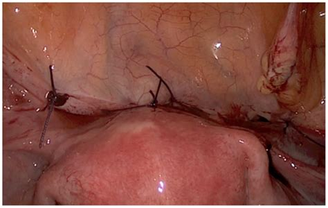 From Scar Tissue After C Section by Frontiers Laparoscopic Treatment Of Placenta Percreta
