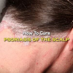 psoriasis hair styles 5 effective tips for how to cure psoriasis of the scalp