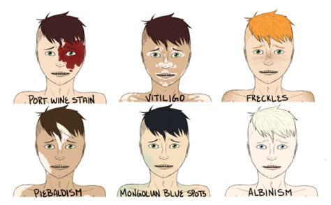 mongolian triangle hair patch mongolian spots tumblr