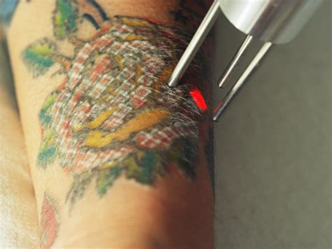 light tattoo removal removal laser technology in houston
