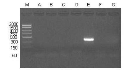 Serum Hpv plasma serum hpv high risk pcr detection kit