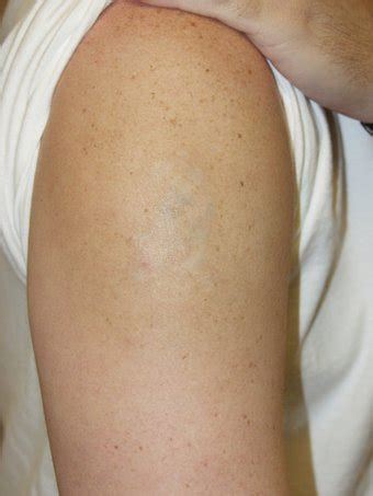 laser tattoo removal atlanta laser removal photo from louis m dejoseph md