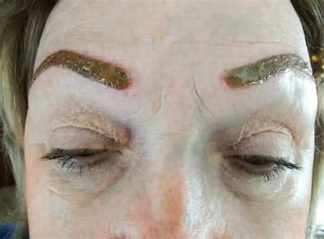 tattoo eyeliner infection eyebrow complication one week after permanent makeup