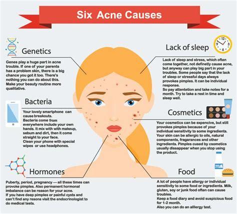 acne diagram acne types symptoms causes treatments