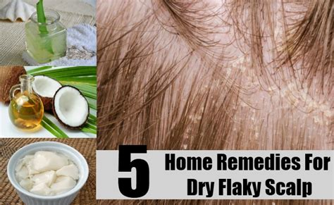 5 home remedies for flaky scalp treatments