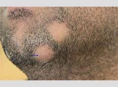 Alopecia areata | Primary Care Dermatology Society | UK Alopecia Areata Totalis