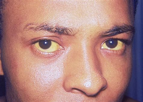 Eyeshadow Kuning jika tubuh jadi kuning tanda hepatitis a sudah mulai