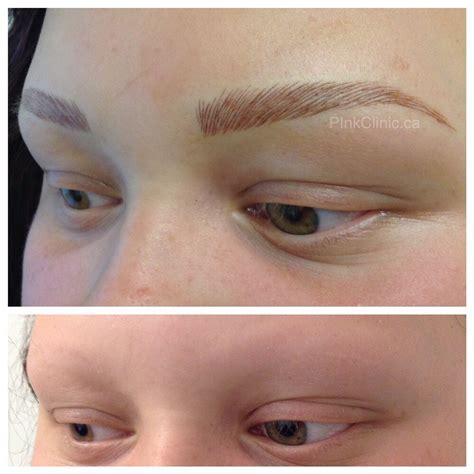 Eyebrows Treatment Paket 2 eyebrow hairstroke treatment in medium brown on patient with alopecia yelp