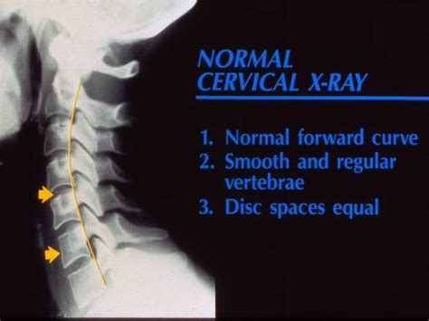 How To Detox From Xray by Are Getting Text Neck From Using Their Phones