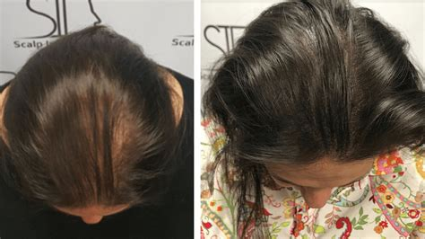 scalp micropigmentation for african american women in florida scalp micropigmentation for women in south florida scalp