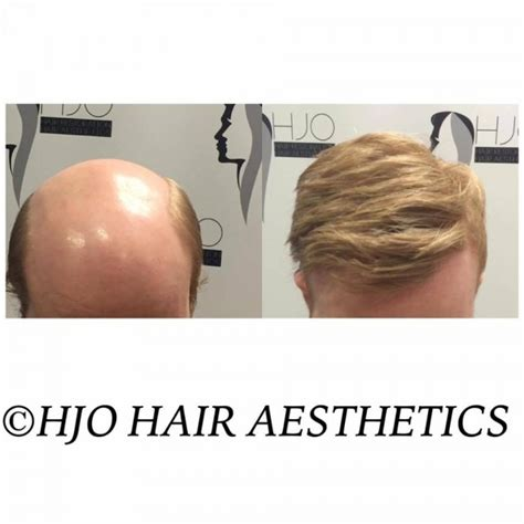 mens hair replacement systems harley jo hair gallery hair replacement for men