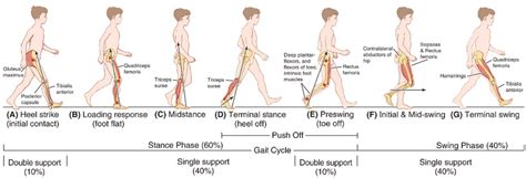 swinging gait physical examination gait epomedicine