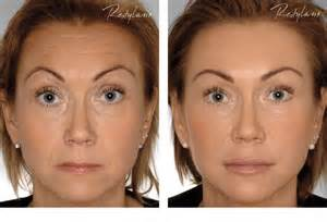 Restylane full face treatment before and after