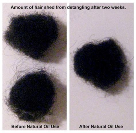 hair shedding i m a believer my experience with oils and less shedding