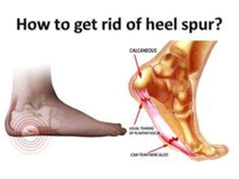 1000 images about heel spurs on plantar