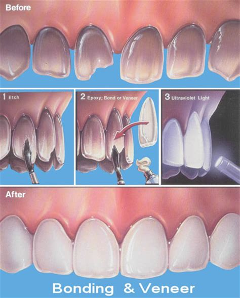 dental bonding bonding treatment india bonding treatment