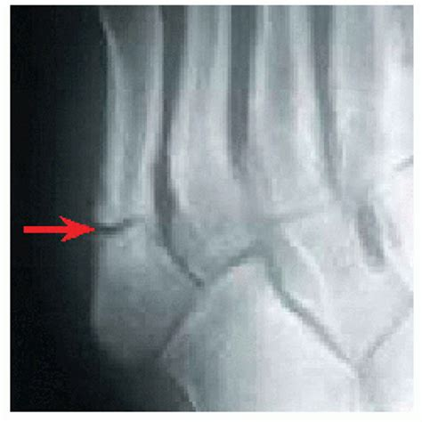 Bunk Bed Fracture Musculoskeletal Key