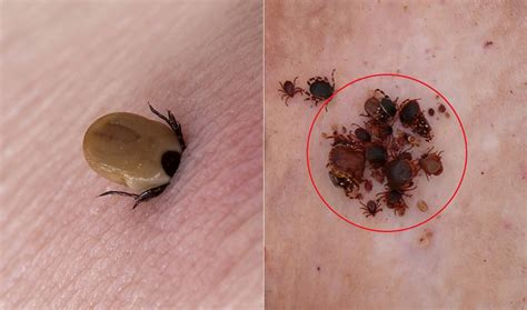 tick bite a farmer suddenly died from tick bite but what doctors discovered later left them